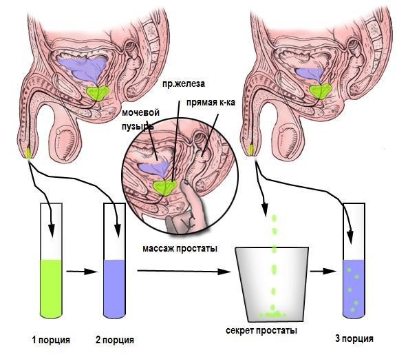 Влияния простатита на эякуляцию вильпрафен курс при лечении простатита