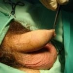 операция по увеличению пениса