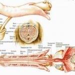 Лигаментотомия, как происходит