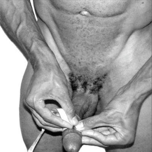 Увеличение полового члена с помощью операции и в домашних условиях