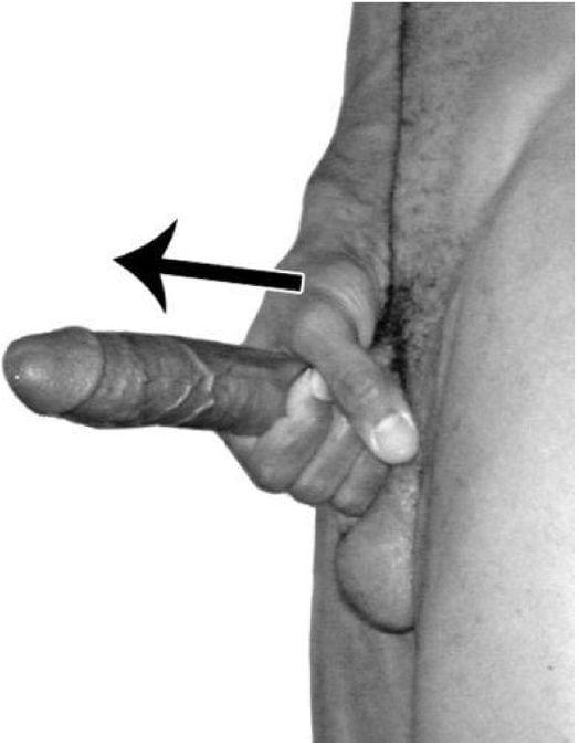Член 10 см это нормальный пенис Фото полового органа