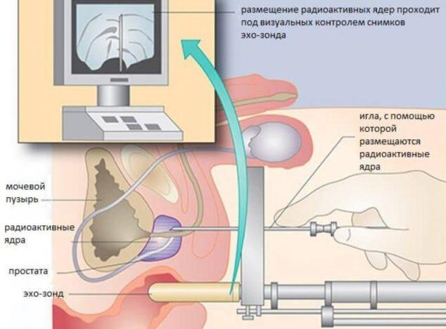 Быстрый путь лечения после брахитерапии рака предстательной железы