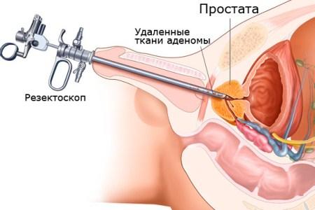 Хронический простатит очаговый фиброз