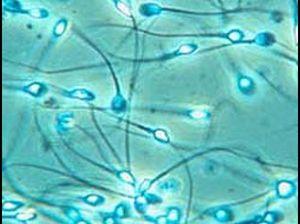Патологические формы в спермограмме и нормы: аномалии головки, шейки, хвоста